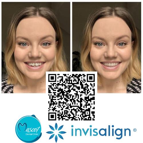 Invisalign - Smileview
